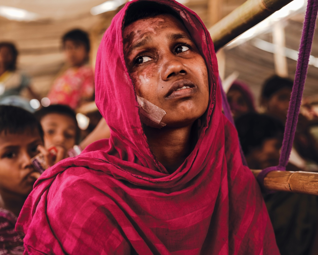 The physical evidence of atrocities is overwhelming among survivors in the refugee camps. Momtaz Begum was treated for burns to her face and body. Photo: Patrick Brown/Panos Pictures/UNICEF