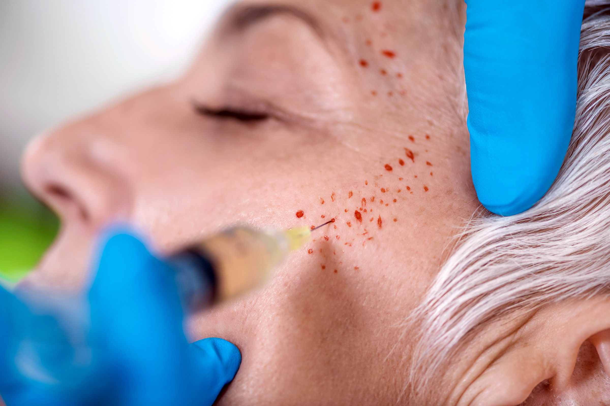 Vampire Facials Linked to Two Confirmed Cases of HIV In New Mexico -  Rolling Stone