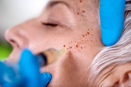 Vampire Facials Linked to Two Confirmed Cases of HIV In New