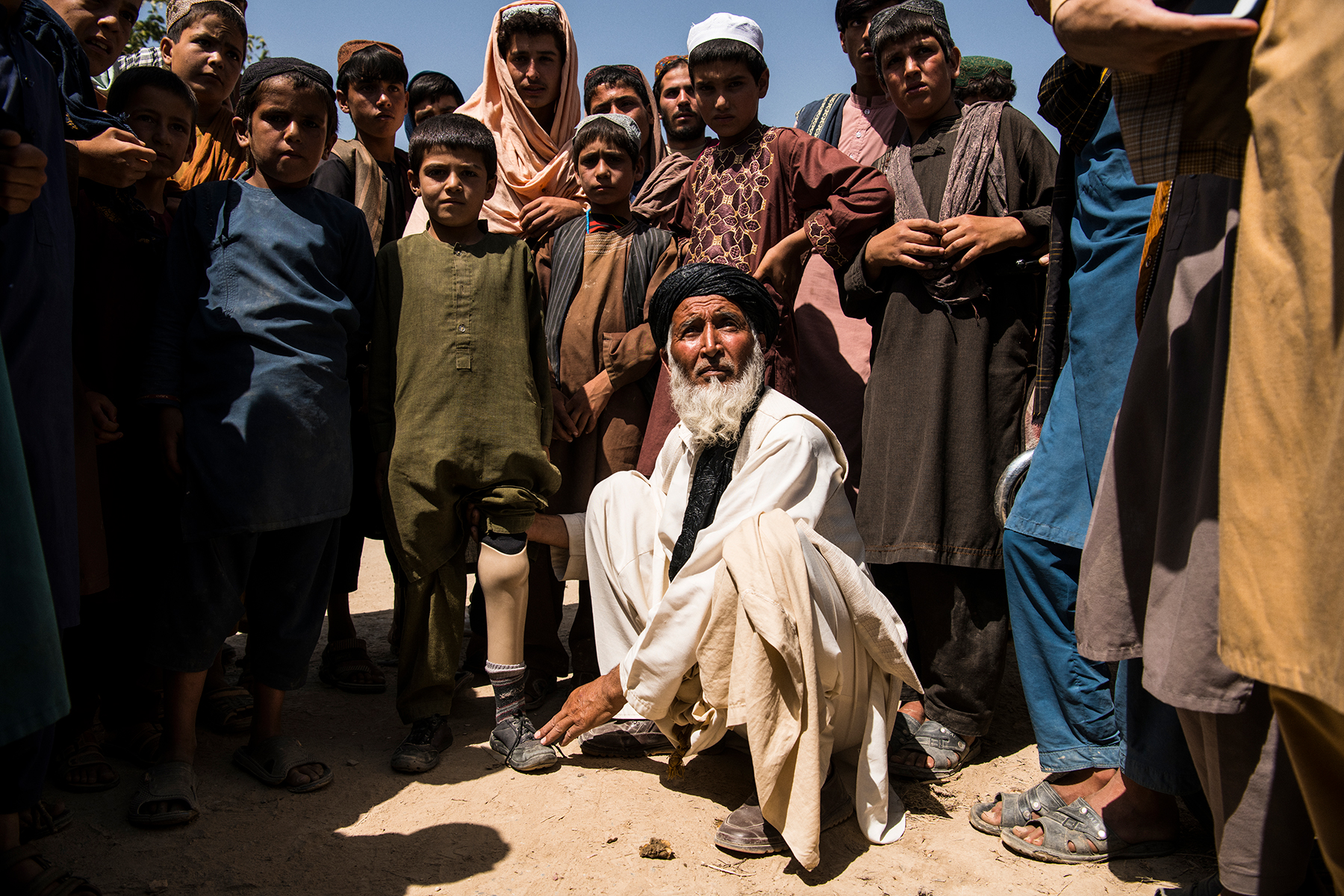 A father with his son, who lost a leg to what he says was a U.S. airstrike (check this) in the Taliban-controlled village of Qala Amir, Tangi Valley, Wardak province.The Tangi Valley and it's numerous villages, including Qala Amir, pictured, in Sayedabad district, Wardak province, has been under the control of the Taliban for several years following the withdrawal of American forces who occupied a small base just outside Qala Amir and is, since American forces curtailed their use of air power and special forces raids as agreed in the February 29 Doha Agreement with the Taliban, as much at peace as it has been probably since the insurgency began in the mid-2000s. The Tangi Valley saw extremely heavy fighting in the years that control was contested, but, once the U.S. withdrew from Tangi in 2014 and Afghan government forces were unable to hold it the only way it could be threatened was through night raids and air strikes, which occurred especially regularly in 2018 and 2019 as the Americans attempted to pressure the Taliban at the negotiating table. Wardak province, which neighbours Kabul to the southwest, has been a particularly violent province since then. Now, the majority of the province is under the control of the Taliban, with the government holding on to the capital, Maidan Shahr, some district centres and nominally, Highway 1 which passes lengthways through the province between Kabul and Ghazni province.
