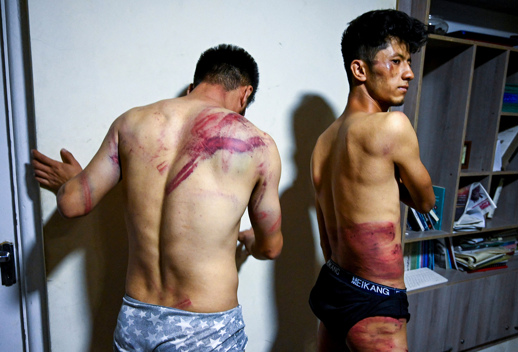 In this picture taken on September 8, 2021, Afghan newspaper Etilaat Roz journalists Nematullah Naqdi (L) and Taqi Daryabi show their wounds in their office in Kabul after being released from Taliban custody. - Two Afghan journalists have shown off ugly welts and bruises after being beaten and detained for hours by Taliban fighters for covering a protest in the Afghan capital. - TO GO WITH, 'Afghanistan-conflict-journalists', Focus by Emmanuel Duparcq (Photo by Wakil KOHSAR / AFP) / TO GO WITH, 'Afghanistan-conflict-journalists', Focus by Emmanuel Duparcq (Photo by WAKIL KOHSAR/AFP via Getty Images)